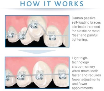 Braces, Invisalign, Lingual braces, Speed braces Which One ...
